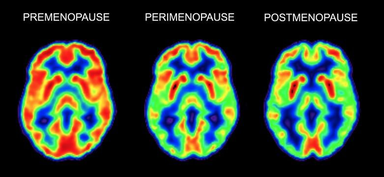 PET scans of brain metabolic activity at three menopausal stages: premenopause, perimenopause, and postmenopause. The red color indicates areas of maximum metabolic activity, yellow-green indicates less activity, and green to blue indicates low to no activity.